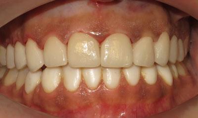 Dental Veneers – Mississauga Smiles Dentistry