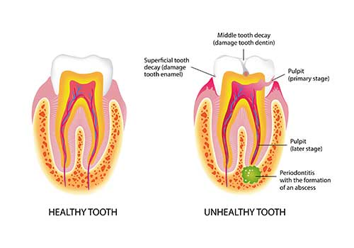 Root Canal Treatment in Mississauga