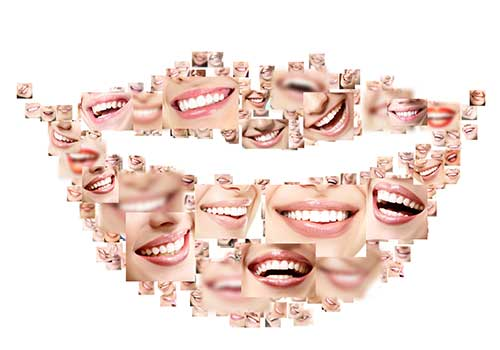 teeth whitening in mississauga